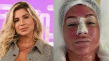 """Dani Souza faz tratamento facial com placenta: """"Bem interessante"""""""