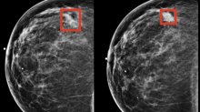 RadNet's DeepHealth Artificial Intelligence Subsidiary Demonstrates Earlier Breast Cancer Detection in New Study