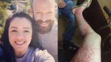 Une maman a failli perdre la vie à cause d'une balade dans un champ de citrouilles