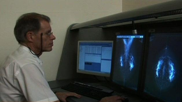 Radiologists reviewing mammograms