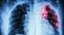 Tuberculose : de moins en moins de morts