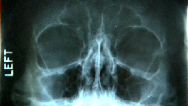 X-rays up for auction may show Marylin Monroe's cosmetic surgery