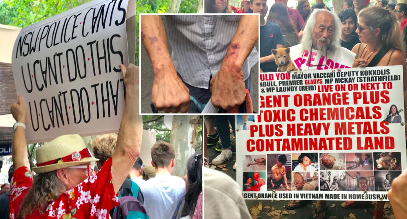'Say sorry now!' Thousands attend protest for activist after his 'brutal' arrest