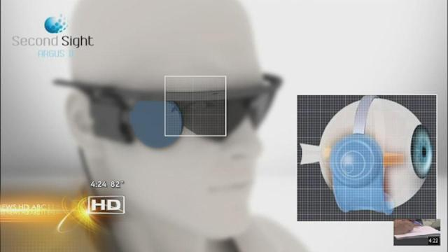 Breakthough allows blind patients to see