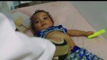 Malnutrition Among Children in East Damascus Increases As Food Prices Rise
