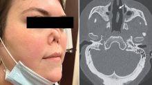 Disturbing reason behind woman's disappearing nose