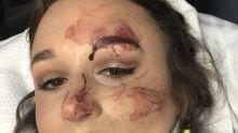 Sobrevive a un accidente de tráfico y aprovecha para elogiar en redes su maquillaje
