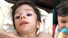 Emaciated boy makes incredible transformation after he's adopted: 'He was bones and skin'