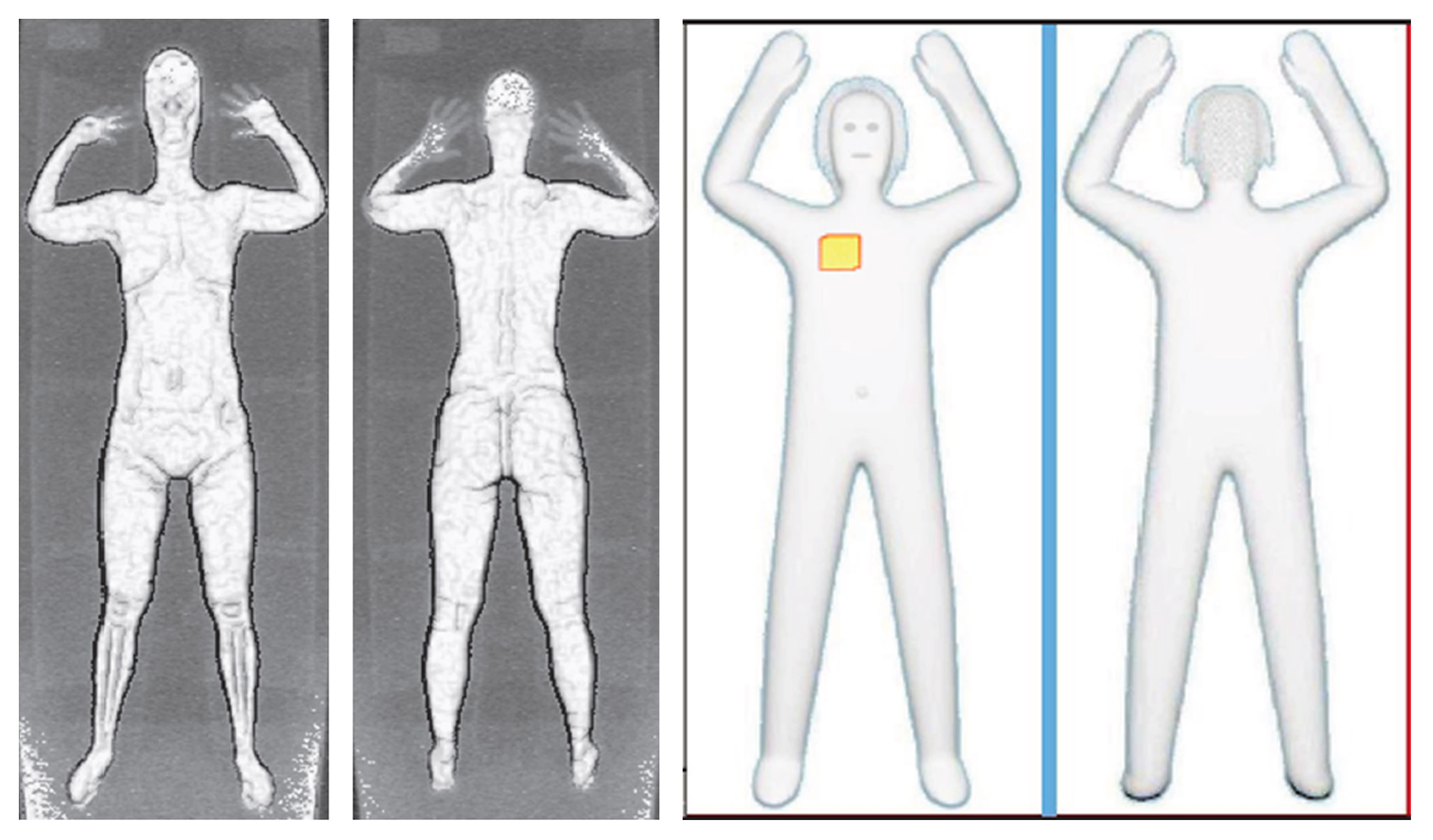 These two sets of images provided by the Transportation Security Administration are samples that show details of what TSA officers see on computer monitors when passengers pass through airport body scanners. At left are two images using backscatter advanced image X-ray technology from the huge scanners that were introduced in 2010 at O'Hare International Airport in Chicago and other airports. At right are images from new scanners using new millimeter wave technology that produces a cartoon-like outline rather than naked images of passengers produced by using X-rays. (AP Photo/Transportation Security Administration)