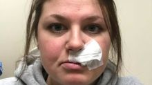 'Never ever ever did I think this would happen to me': Mom warns about tanning bed after being diagnosed with skin cancer at 26