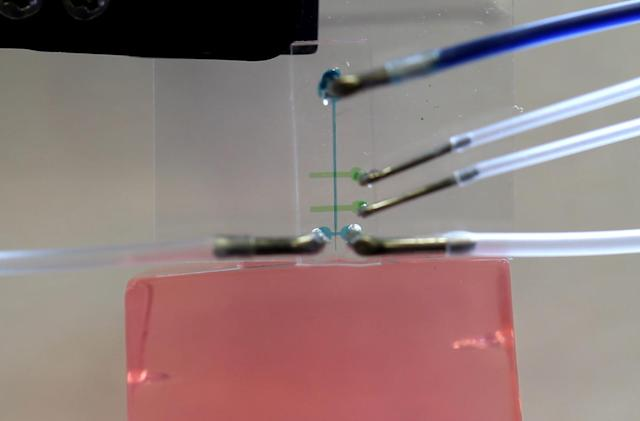 Researchers create less invasive method for placing brain electrodes