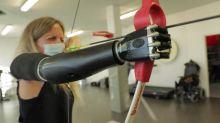 La renaissance de Priscille, première femme de France équipée d'un bras bionique