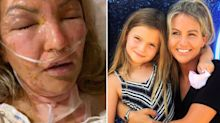 Mum rushed to the ICU after 'hand sanitiser caught fire'
