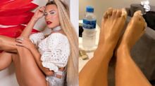 Lore Improta mostra pés machucados após ensaio de Carnaval
