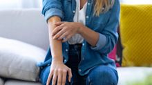 AbbVie Submits Anti-Inflammatory Drug Rinvoq for FDA, Europe Approval for Atopic Dermatitis