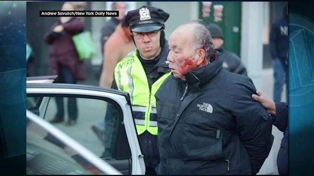Elderly Man Bloodied By NYPD For Jaywalking?