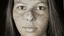 Ultraviolet photos reveal how sun exposure damages our skin