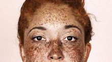 Breathtaking Photos Show the Undeniable Beauty of Freckles