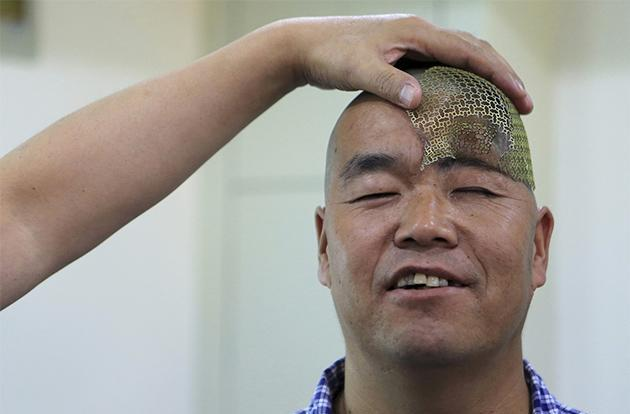 3D-printed mesh gives man with half a skull hope for recovery