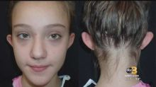 11-year-old gets cosmetic surgery after being bullied over her 'elf ears'