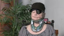 Woman recounts how bear 'ripped this whole side of my face off'