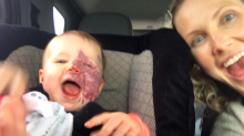 Mom's post about baby's port-wine stain draws swift support