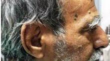"""Indiano tem """"chifre"""" de 10 centímetros retirado da cabeça"""