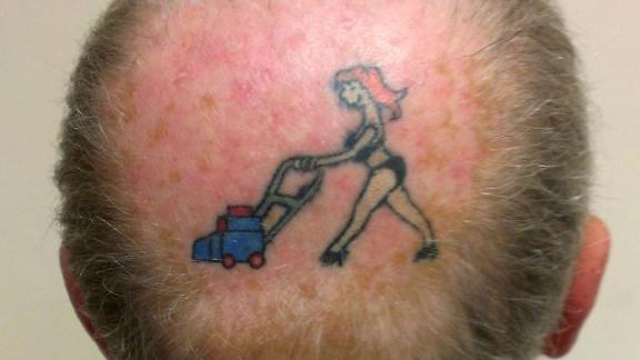Man Tattoos His Wife On Bald Spot