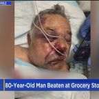 Police Search For Suspects In Beating Of Elderly Lancaster Man