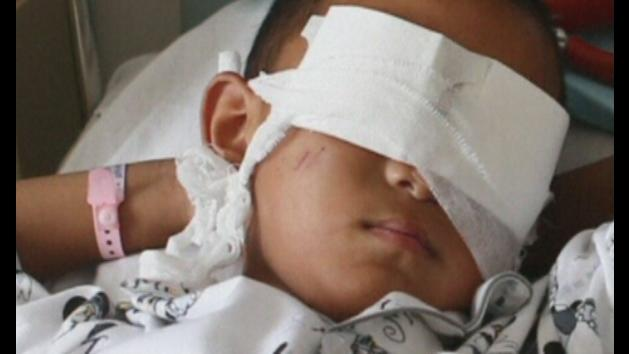 Chinese boy has eyes gouged out in horrific attack