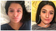 Acid Attack Survivor Posts Makeup-Free Selfie to Give Others Hope