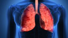 Lung Diseases Caused By Breathing In Polluted Air