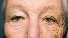 El curioso caso del hombre que envejeció solo del lado izquierdo de su rostro