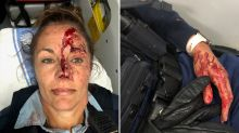 Police officer's horrific injuries after she is 'repeatedly punched in face'