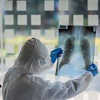 U.S. cases of coronavirus surge over 330,000