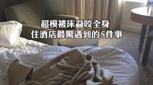 超模被床蝨咬全身 住酒店最驚遇到的5件事