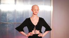 Das etwas andere Model: Melanie Gaydos räumt mit Schönheitsidealen auf