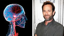As Luke Perry dies from a stroke aged 52, here's how to spot symptoms of the condition
