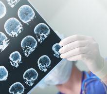 Eli Lilly Earns Landmark Approval for Alzheimer's Disease Imaging Agent