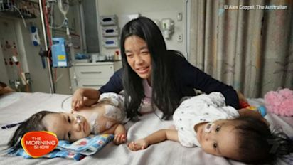 First pictures released of twins after separation surgery