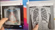 TikTok user's shocking discovery after chest x-ray