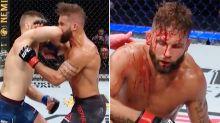 'Se ve el cráneo': el mundo de la UFC en shock tras un KO despiadado