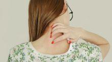 Llega a España un nuevo tratamiento biológico contra la psoriasis