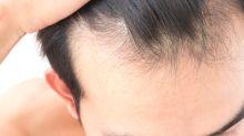 La pérdida de cabello empeoraría ¡a los 20!