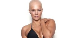 'It is a journey': Sports Illustrated swimsuit hopeful opens up about living with alopecia
