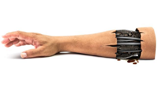 Robots could wear flesh to help form transplants