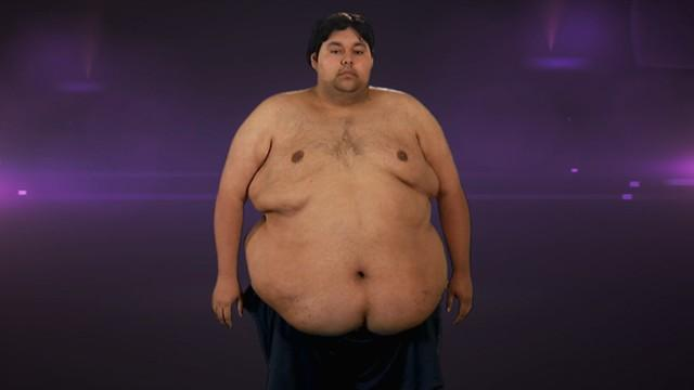 Extreme Weight Loss: Man Loses Half His Weight
