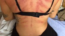 Hairdresser's horrific injuries from her job shared online