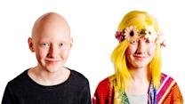 Alopecia Schoolgirl Models Wigs To Inspire Sufferers
