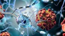 Multiple sclerosis: New stem cell transplantation may 'freeze' disease progression